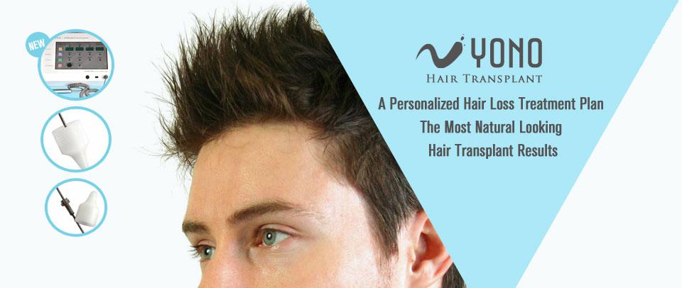 The Natural History Of Balding Yono Hair Transplant