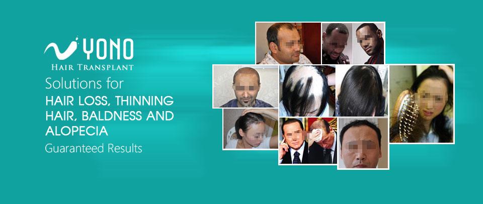 Hair Loss Treatment Plan Yono Hair Transplant